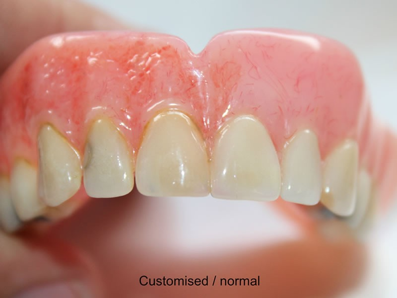 The image of customised dentures - variant 2